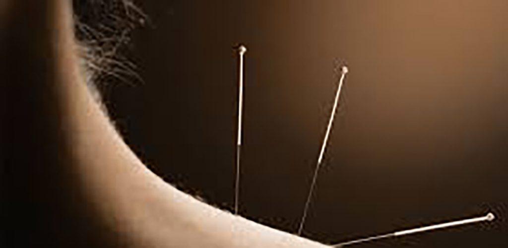 Acupuncture - Acupuncture in Atlanta Georgia